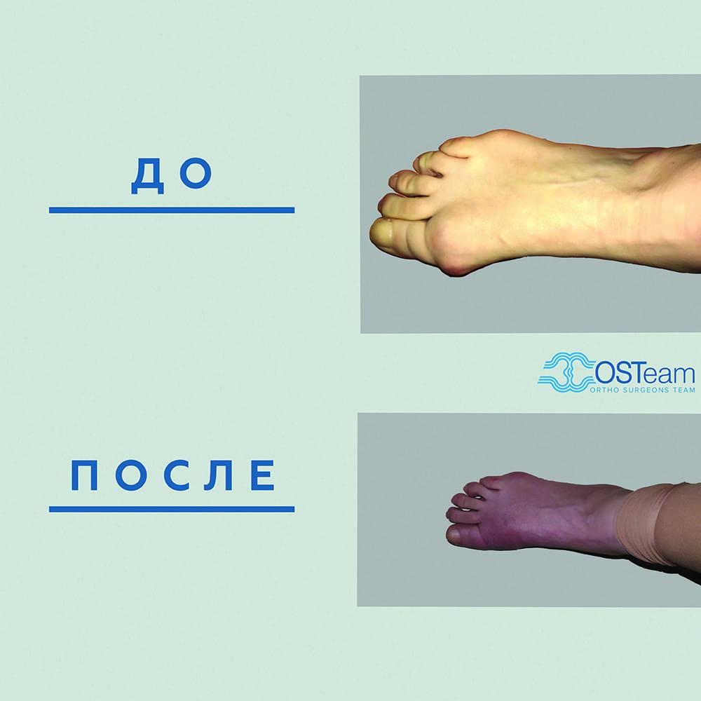 Как вылечить без операции косточку на ноге